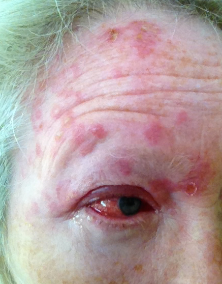 However, later in life the herpes varicella-zoster virus may become reactivated, causing shingles 3