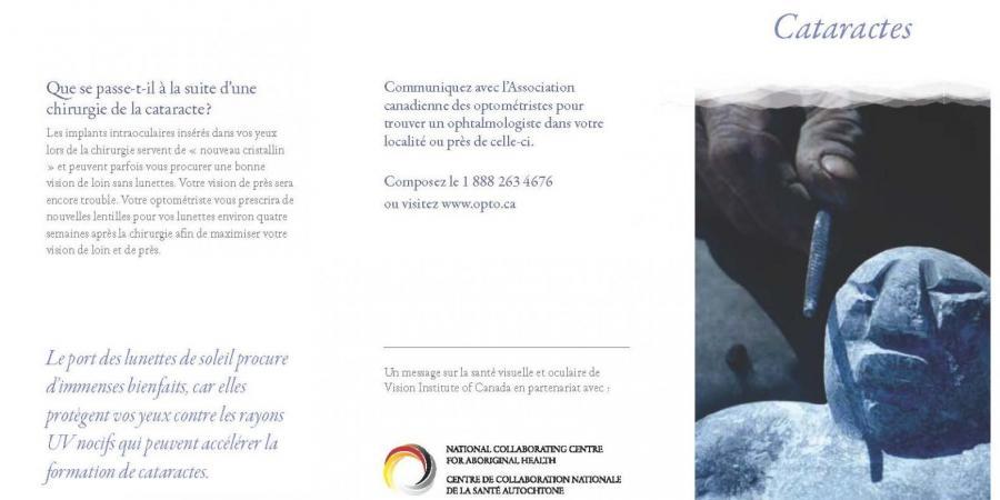cataractes, brochures