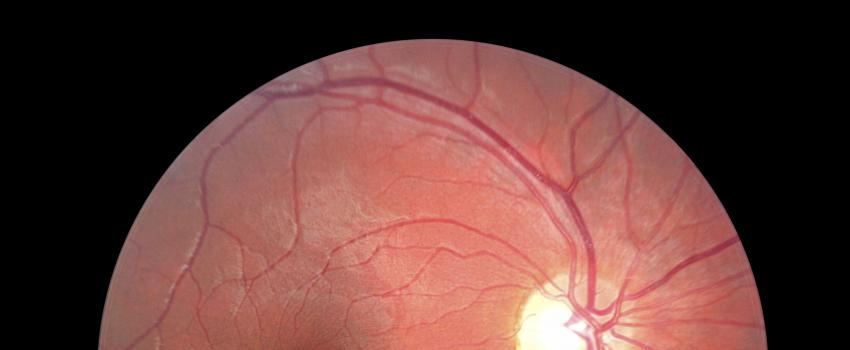 D collement du vitr the canadian association of optometrists - Couche du globe oculaire ...